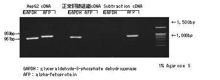 双链特异性直接消化cDNA削减试剂盒