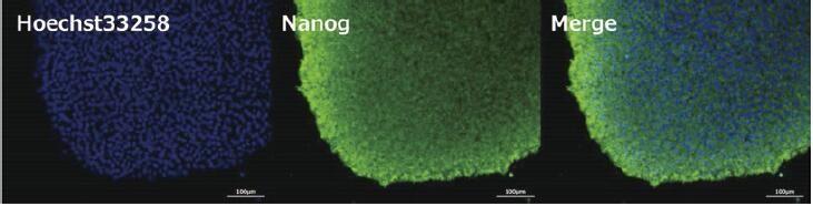 未分化标记抗体