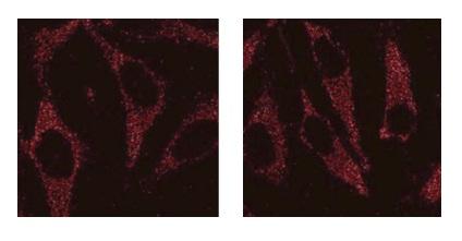 自噬研究用抗体