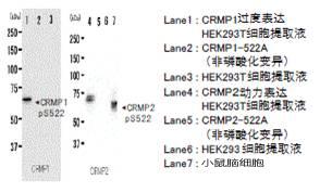 抗磷酸化CRMP1/2(Ser522),兔