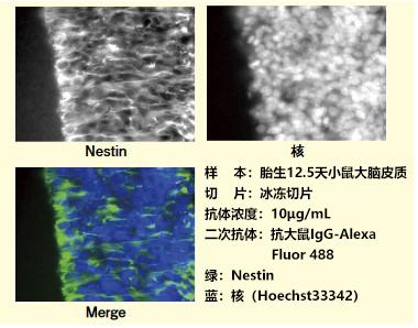 抗小鼠Nestin,大鼠单克隆抗体(7A3)