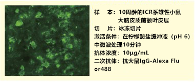 抗小鼠血清素转运蛋白,大鼠单克隆抗体(R5-3-2)
